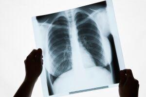 Clínica foi autuada e obrigada a interromper o uso de um aparelho de raio-X