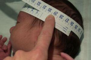 Governo vai monitorar bebês sem microcefalia cujas mães foram infectadas