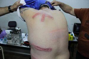 As agressões resultaram em hematomas pelas costas, costelas e braços do sindicalista