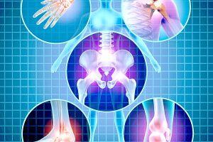 A osteoporose decorre da diminuição da quantidade de cálcio no esqueleto