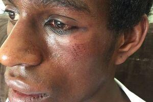 O relato e as marcar das violência sofrida por Diogo foram publicados em sua página no Facebook