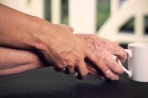 Ministério da Saúde aprovou um novo protocolo clínico que inclui mais dois tipos de medicamentos para tratar o mal de Parkinson