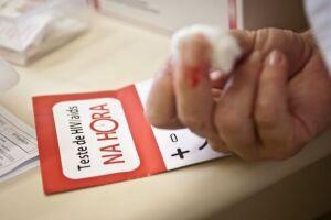 Experiência brasileira no combate e tratamento da aids será apresentada em conferência internacional