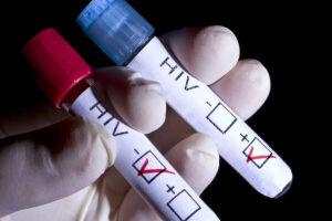OMS diz epidemia de aids não terá fim sem ações direcionadas
