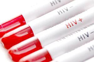 Entidades de saúde pedem manutenção de programa de Aids na gestão Bolsonaro