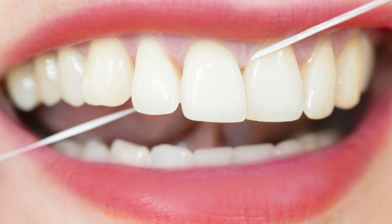 30decb176 Fio dental  um aliado para manter a saúde bucal - Diário do Litoral